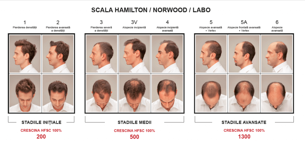 Scala Hamilton/Norwood/Labo